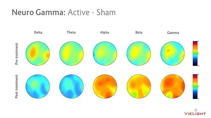 vielight neuro gamma EEG map