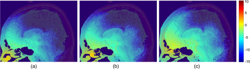 brain photobiomodulation